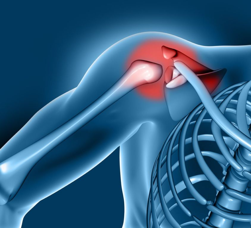 Tratamiento de la osteoartritis