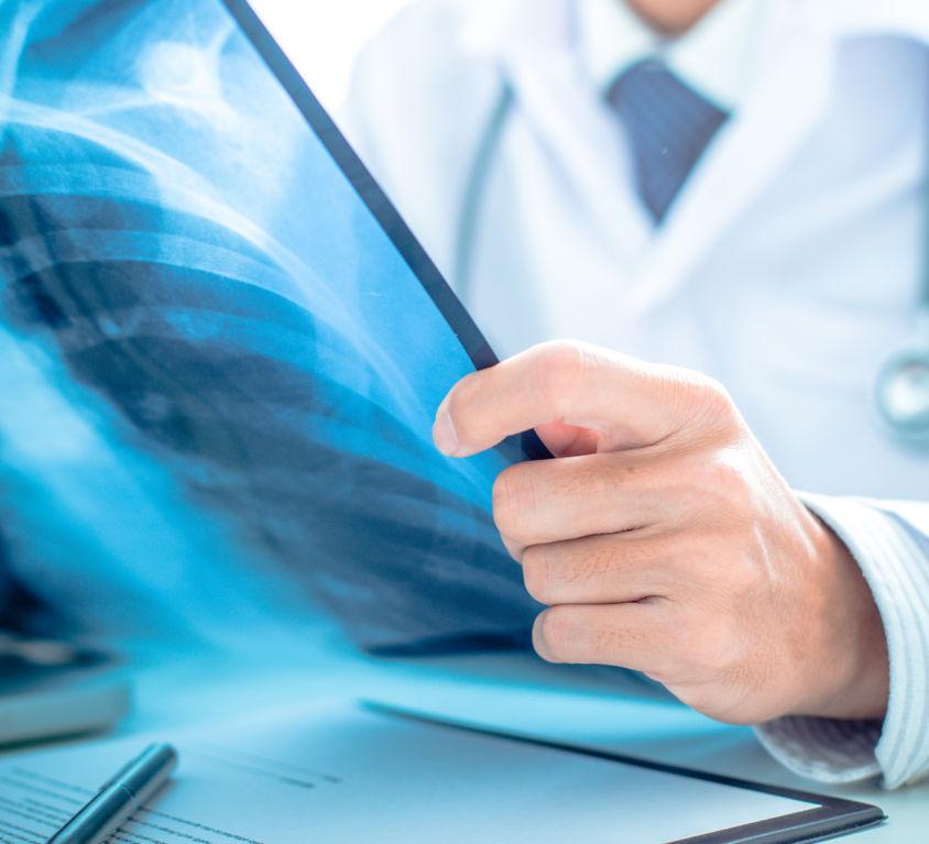 Pacientes oncológicos o cáncer